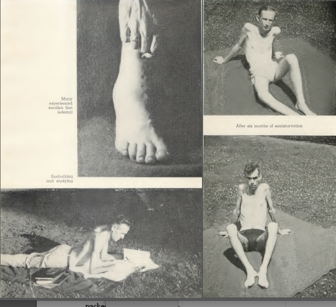 1) Minnesota Starvation Experiment - Men after 6 months of near starvation at 1500 calories per day. 2) Edema (swelling) in foot caused by malnourishment and weakedn heart