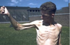Minnesota Starvation Experiment - Man after 6 months of near starvation at 1500 calories per day