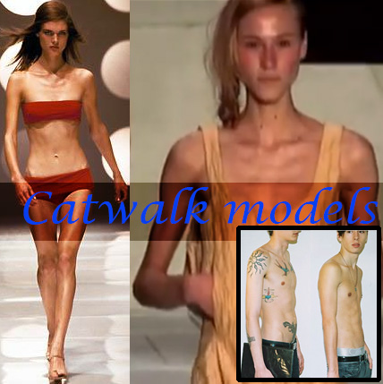 "Emaciated aka ""skinny"" catwalk models. Woman in bikini, woman in dress, shirtless boys.Ribs and chest bones protruding, no muscles"